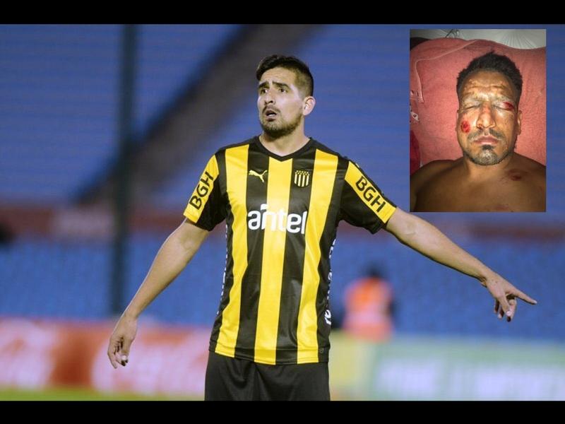 Lucas Viatri avanza en recuperación por quemaduras en el rostro