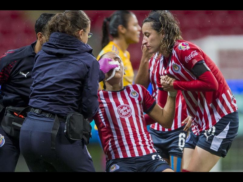 ¡Llega la violencia a la Liga MX Femenil!