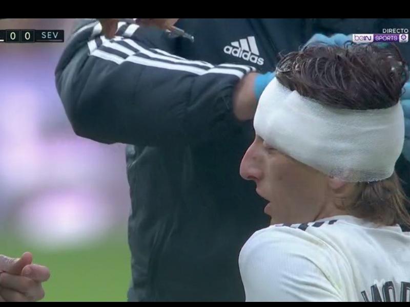 Video: Luka Modric recibe terrible golpe en la cabeza