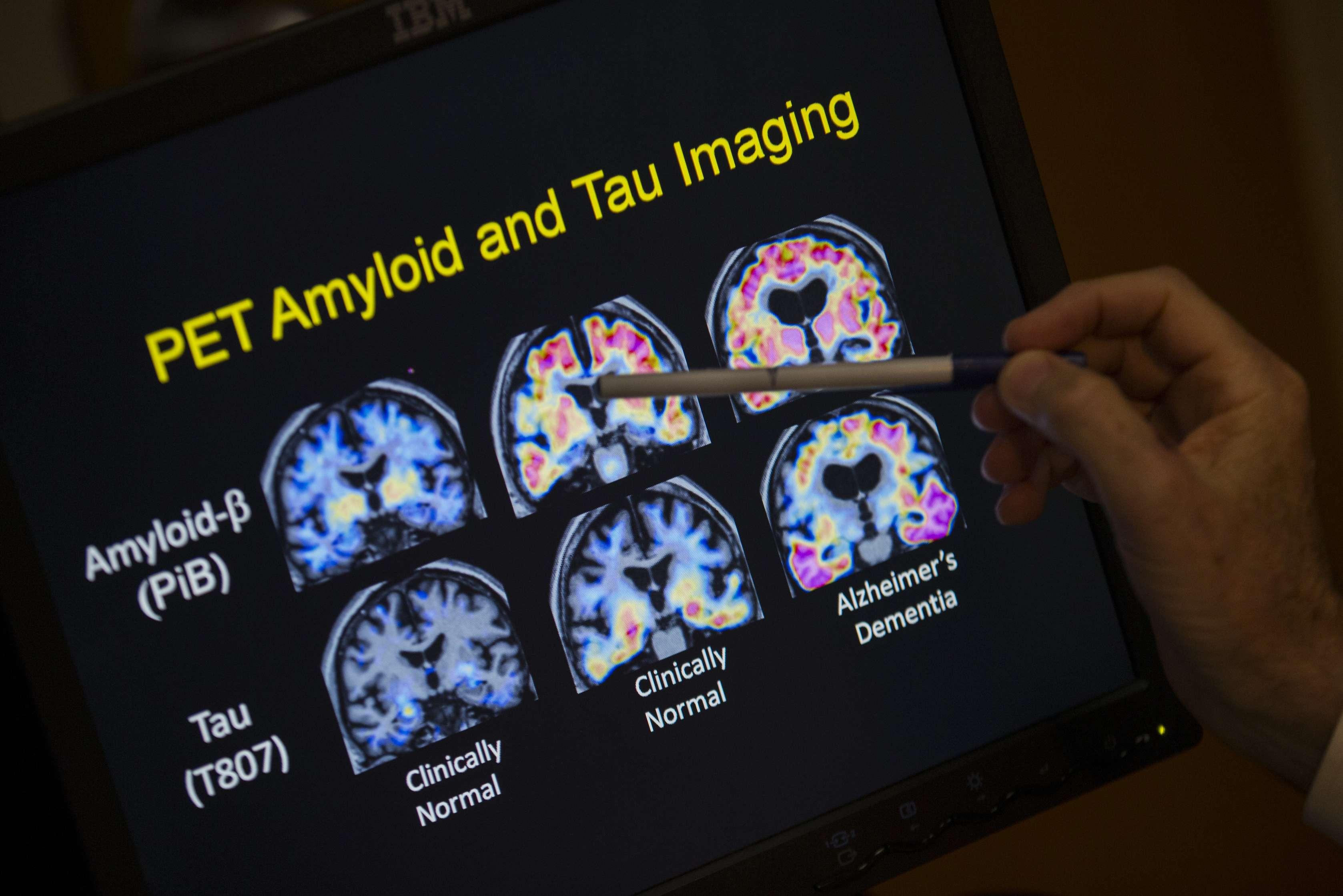 Médicos no buscan síntomas de Alzheimer en ancianos