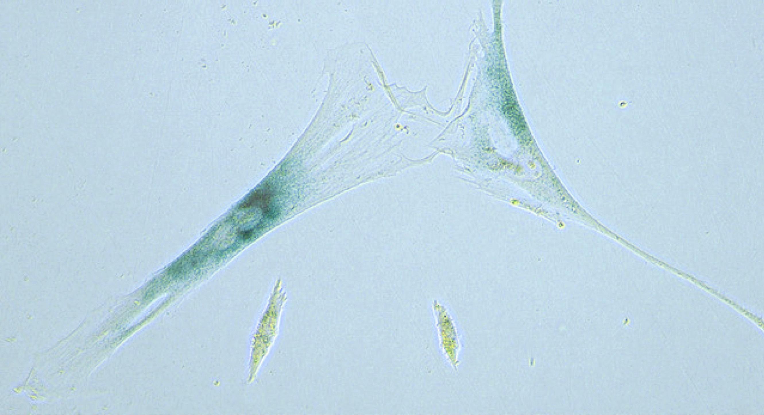 """""""Células zombis"""" podrían ser factor en envejecimiento"""
